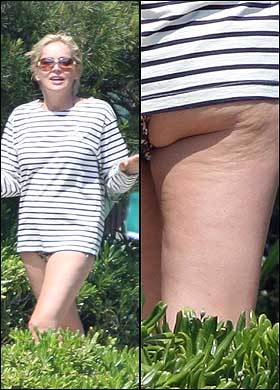 cellulite-sharon-stone