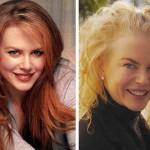 Nicole Kidman prima e dopo il Botox
