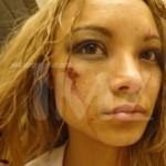 La cantante Tila Tequila aggredita durante un concerto