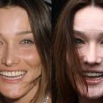 L'orribile viso di Carla Bruni dopo il Botox